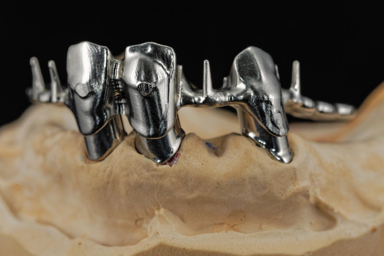 Fritz schumacher gmbh dentallabor fräszentrum
